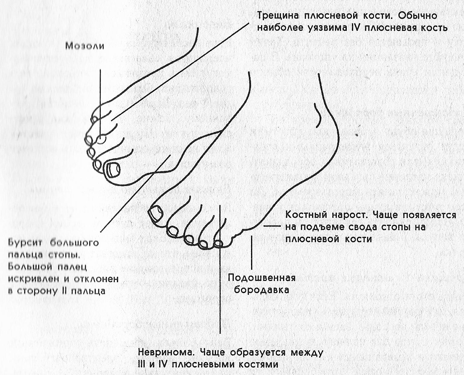 Боль в подушечке большого пальца ноги