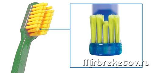 Применение и виды ершиков для брекетов